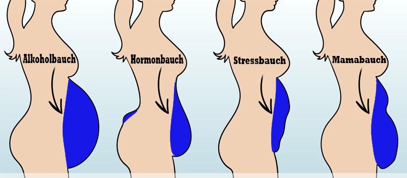 Hormonbauch