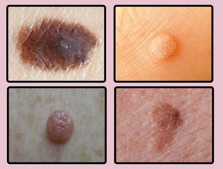 Entfernen Sie Muttermale Warzen Mitesser Hautzipfel Und